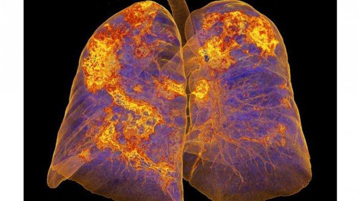 Cara Membersihkan Paru-paru di Tengah Covid-19, Pakai Bahan Alami Ini