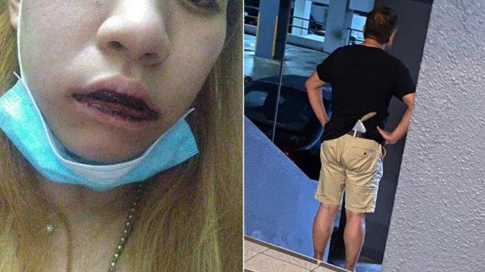 Salah Paham Soal Parkir Mobil, Wanita ini Dipukul Seorang Pengusaha Lalu Diancam Pakai Pisau