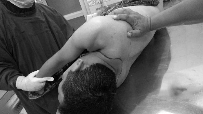 Seorang Ojek Online Tewas Ditikam di Binjai, Sepeda Motornya Ditinggalkan Pelaku