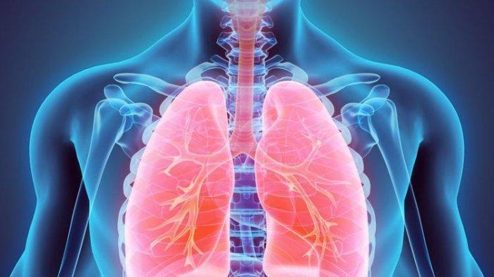 MIRIP GEJALA COVID-19, Kenali Perbedaan Covid dengan Tuberkolosis,Penjelasan Dokter Gejala Batuk TBC