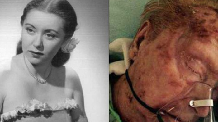 Tragis, Eks Model Cantik nan Menawan Ini Meninggal karena Kudis yang Menggerogotinya