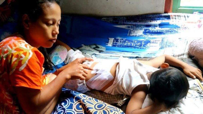 Kasihannya Balita Ini Mendapat 42 Jahitan Setelah Diserang Kawanan Monyet di Pematang Bandar