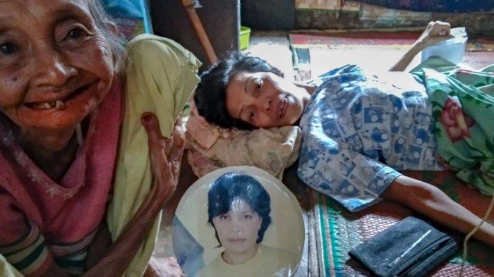 Kisah Pilu Orang Miskin Lumpuh Layu Pasrah Dirawat di Rumah hingga Makan Rumput Rebus
