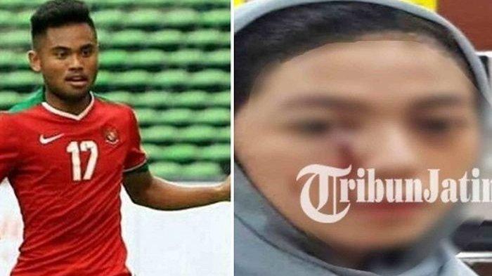 Saddil Ramdani - Kasus Penganiayaan Dicabut Mantan Kekasih, Gak Sengaja Dicakar, Respons Polisi