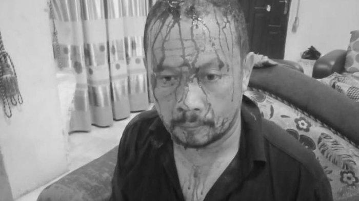 Serem Banget, Pengurus Masjid Mandi Darah Dihantami Besi, Pelakunya Nyamar Pakai Mukena