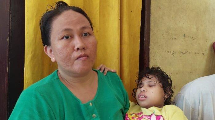 Kisah Penjual Pecal Keliling di Sergai, Anaknya Alami Cacat Total Sejak Lahir, Berharap Ada Bantuan
