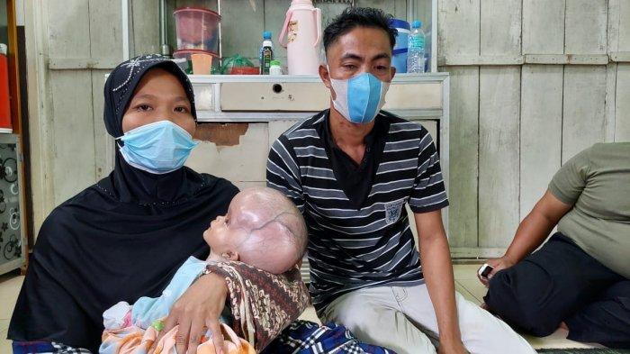 Siti Nurhaliza, Bayi 2 Bulan Penderita Hidrosefalus Akan Segera Dirujuk ke Rumah Sakit