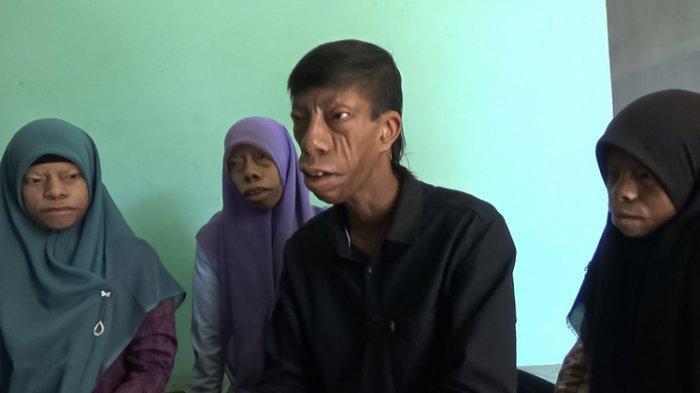 Surya Manurung dan adik-adiknya saat dijumpai di kediaman di Lingkungan 5, Kelurahan Meranti, Kecamatan Kota Kisaran Timur, Kabupaten Asahan, Minggu (1/6/2021).