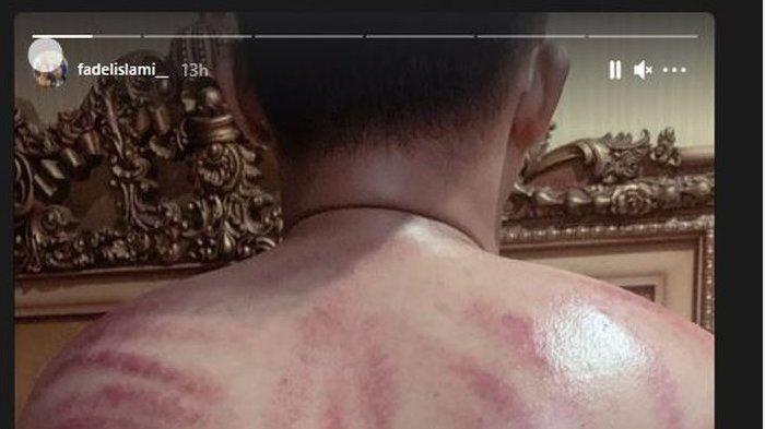 Fadel Islami terang-terangan pamerkan punggung merah penuh bekas kerokan
