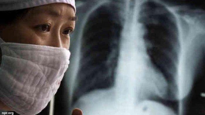 Gejala TBC atau Tuberkulosis tak Banyak yang Tahu, Inilah Gejala-gejalanya dan Bahaya Bisa Mematikan
