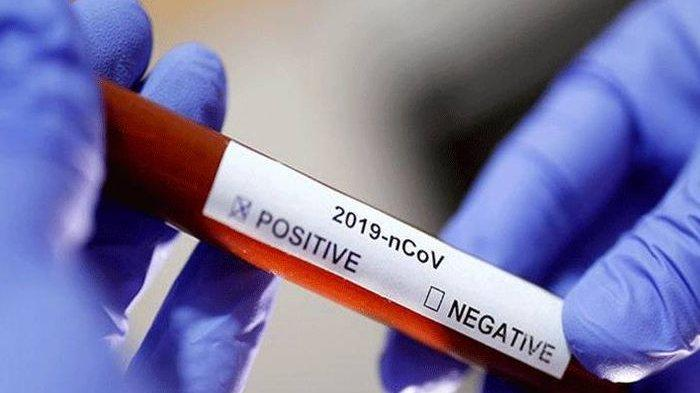 Warga Taput TS Positif Covid-19, Pemkab Langsung Tracing Corona 222 Orang, Hasilnya 48 Reaktif (+)