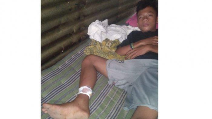 DUH Monyet Liar di Medan Serang Warga, Korban Sampai Kena 20 Jahitan
