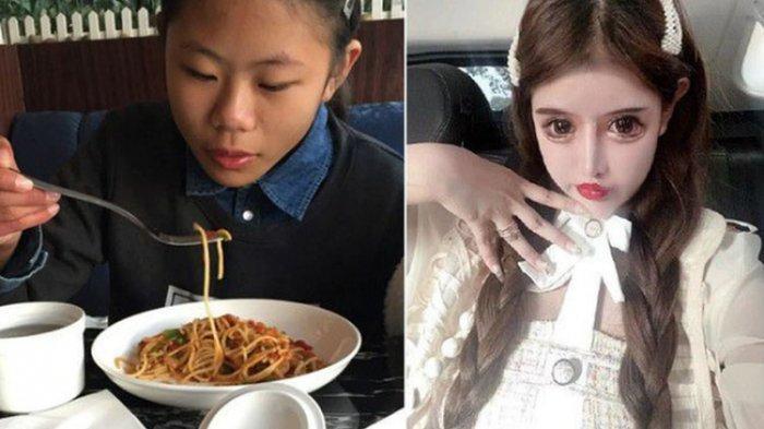 Zhou Chuna, selebgram ketagihan operasi plastik di usianya 16 tahun