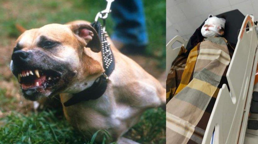 Breaking News Bocah 8 Tahun Digigit Anjing Pitbull Hingga Wajahnya Luka Serius Di Medan Tribun Medan
