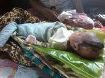 bayi-pengidap-pembengkakan-pembuluh-darah-atau-vaskulitis_20180906_162229.jpg