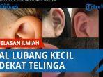 lubang-kecil-di-dekat-telinga.jpg