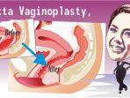 nikita-mirzani-vaginoplasty_20180505_145743.jpg