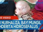 siti-nurhaliza-bayi-penderita-penyakit-hidrosefalus-sejak-36-hari-setelah-melahirkan-qq.jpg
