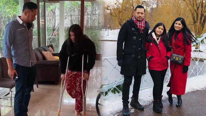Kondisi Terbaru Almira, Anak Annisa Pohan & AHY yang Alami Patah Tulang, Kini Pakai Kursi Roda