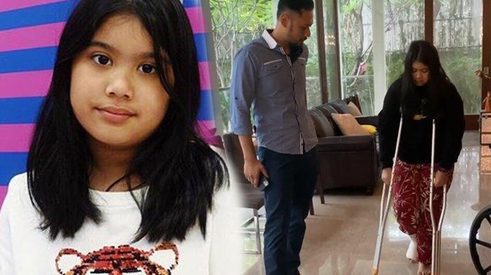 Kondisi Almira Anak AHY & Annisa Pohan Memprihatinkan, Jalan Pakai Tongkat, Cedera saat Olahraga
