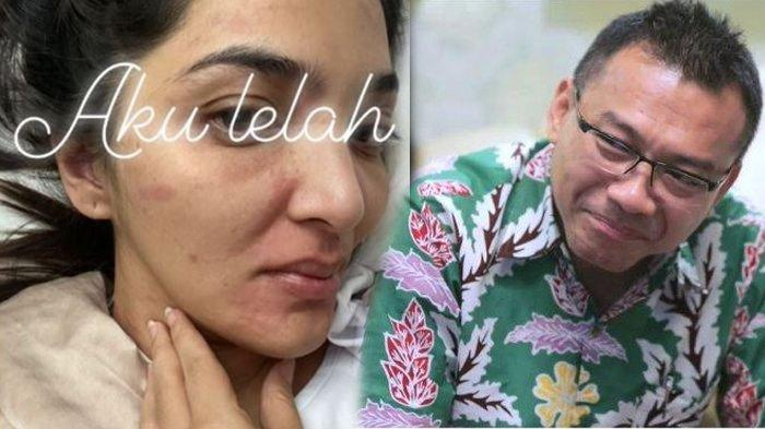 Anang Hermansyah khawatirkan kondisi Ashanty