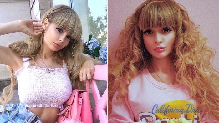 Cantik & Terkenal, Gadis Berwajah Barbie Ini Ternyata Nasibnya Tragis, Beda Jauh dari Postingan IG