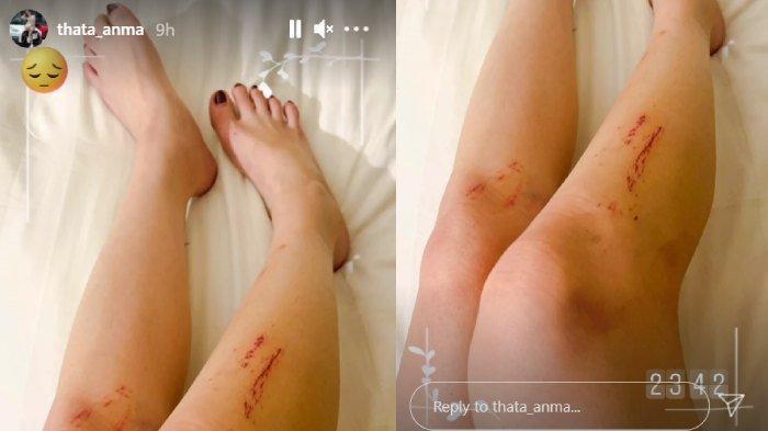 Ayu Thalia alias Thata Anma unggah foto kaki terluka