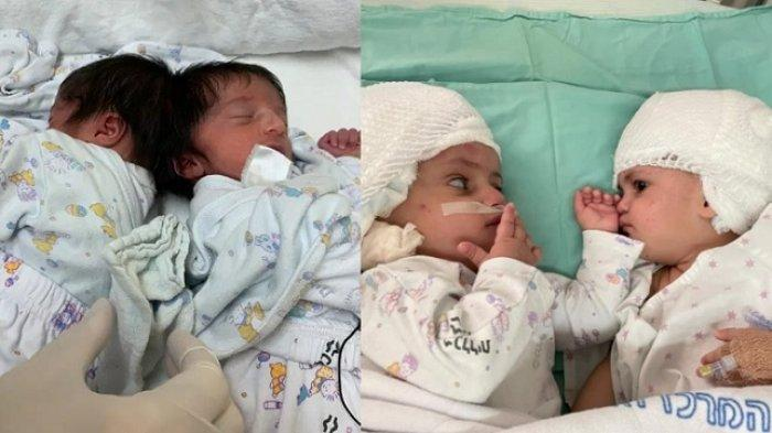 Bayi kembar siam dempet kepala berhasil dipisahkan