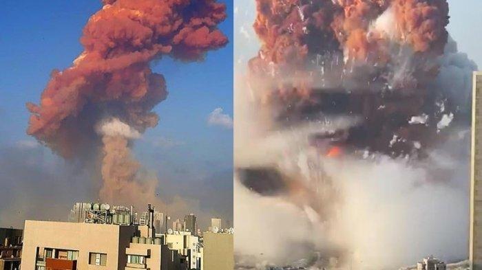 Kondisi Terkini Seorang WNI yang Ikut Jadi Korban Luka dalam Ledakan Besar di Beirut, Lebanon