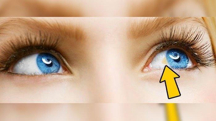 12 Tanda Kamu Idap Penyakit Serius Dilihat Dari Bola Mata Hati Hati Yang Ada Bintik Kuningnya Tribunnewsmaker Com