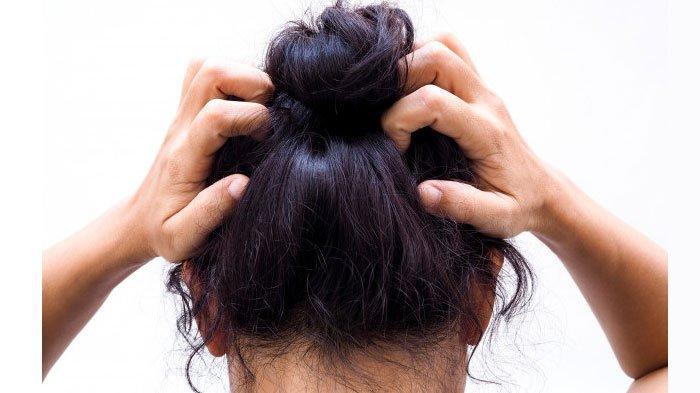 Masker Rambut dari Cuka Apel Bisa Hilangkan Ketombe, Simak Caranya! Bisa Menggunakan Bahan Lain Juga