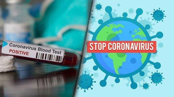 Covid-19 atau Virus Corona.