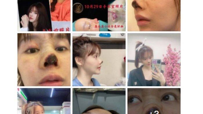 INGIN Makin Cantik, Pesona Wajah Artis Ini Justru Hancur Karena Operasi Plastik, Hidungnya Rusak