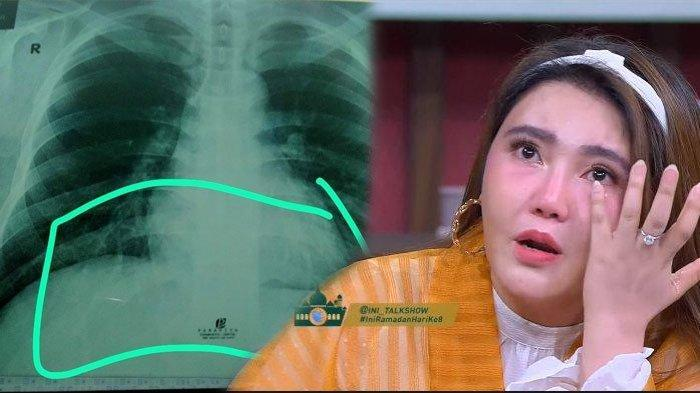 POPULER Kronologi Adik Via Vallen Positif Corona, Berawal dari Pneumonia, Rapid Test Non Reaktif