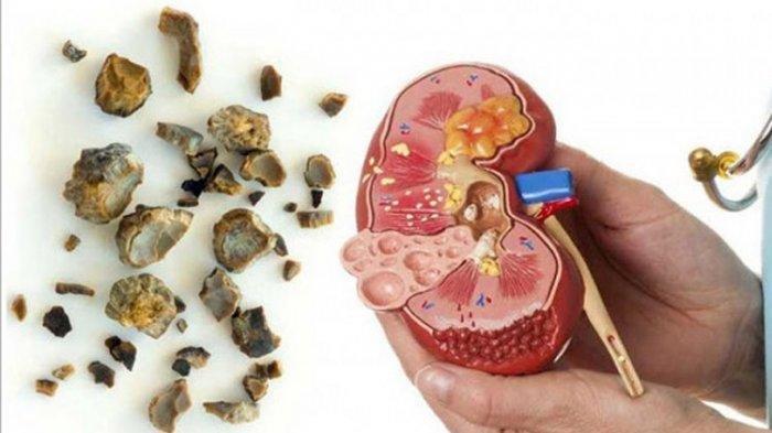 Obat Herbal Hancurkan Batu Ginjal, Ini Resep Minuman Sehat Ala dr Zaidul Akbar, Pakai Alang-alang