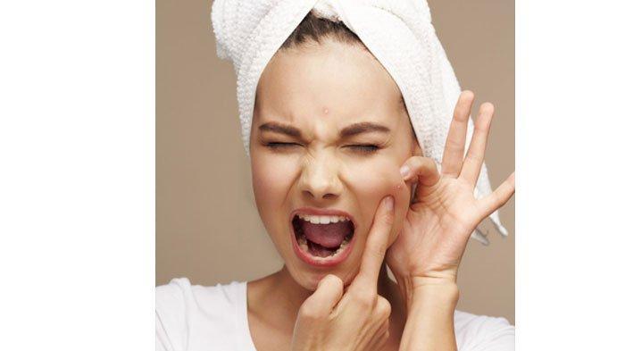 7 Penyebab Jerawat di Wajah yang Jarang Diketahui: Perubahan Hormon hingga Kosmetik yang Tidak Cocok
