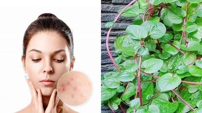 Ilustrasi wanita berjerawat dan daun binahong. Berikut manfaat daun binahong untuk mengatasi jerawat