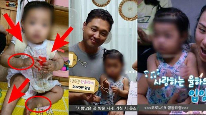 5 Fakta Kematian Jeongin, Bayi 16 Bulan yang Disiksa Orangtua Angkat, Ada Bukti 800 Video Kekerasan