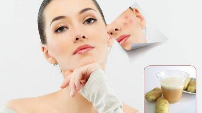 2 Cara Menghilangkan Bekas Jerawat dengan Kentang, Bisa Dibuat Jadi Masker Ampuh agar Wajah Bersih