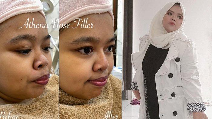 FILLER Hidung Penampilan Kekeyi Kini Jadi Lebih Cantik, Ini Jawabannya Ditanya Soal Biaya