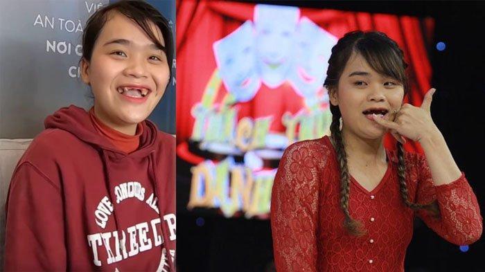 Kondisi awal Pham Ngan Thao yang ompong saat pertama kali muncul di tv