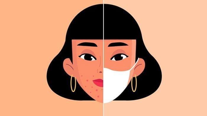 Jadi Masalah saat Pandemi, Bagaimana Cara Mencegah Maskne alias Jerawat karena Penggunaan Masker?