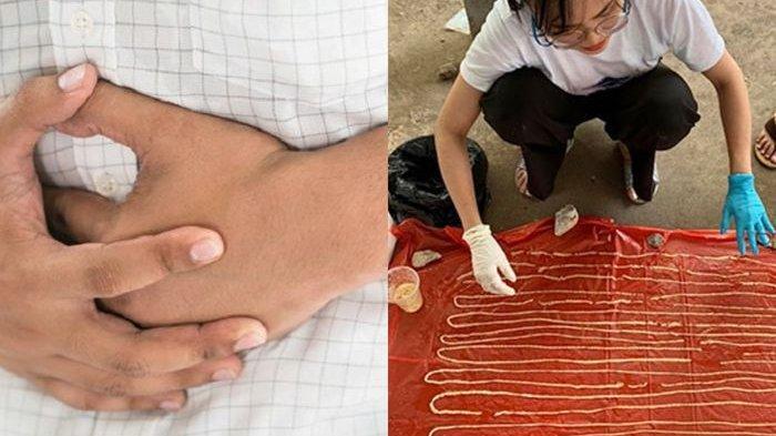 KELEWAT Jorok, Makan Daging Sapi Mentah, Pasien Buat Dokter Syok: Keluarkan Cacing Panjang 18 Meter