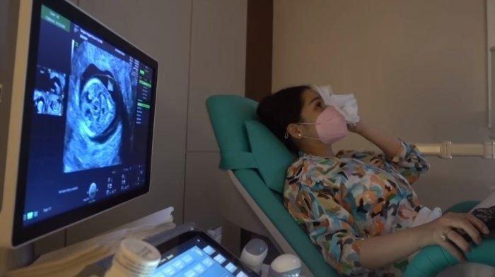 Nagita Slavina Mewek Ungkap Ketakutannya saat USG Anak Kedua, Dokter Kandungan Ungkap Fakta Ini