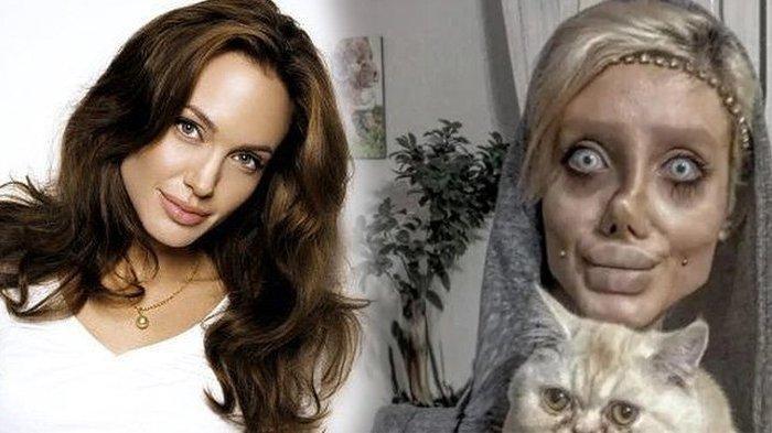 TEROBSESI Berparas Mirip Angelina Jolie, Wanita Iran 50 Kali Permak Wajah, Hasil Horor Mirip Zombie
