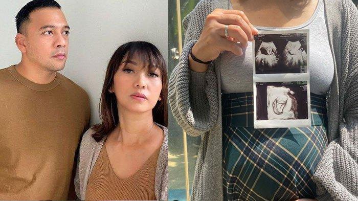 Kabarkan Hamil Anak Keempat di Usia 43 Tahun, Nola Be3 Ungkap Reaksi Suami: Terdiam & Membisu