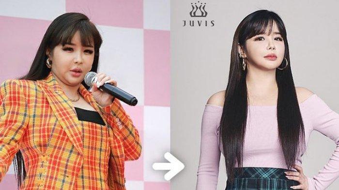 Park Bom Eks 2NE1 Sukses Diet hingga 11 Kg! Rekan Sandara Park: Tak Ingin Kembali ke Penampilan Itu!