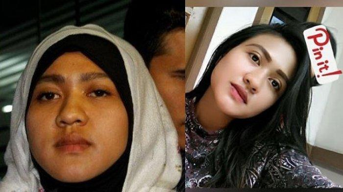 NASIB Wanita Dulu Dicerai Bupati Garut Via SMS Setelah 4 Hari Nikah, Kini Berubah, Ibu Muda Cantik