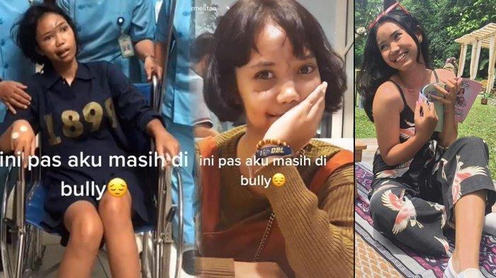 DULU Dibully Akibat Kecelakaan Wajahnya Hancur, Rahang Patah & Koma, Ivonny Kini Dipuji & Jadi Model