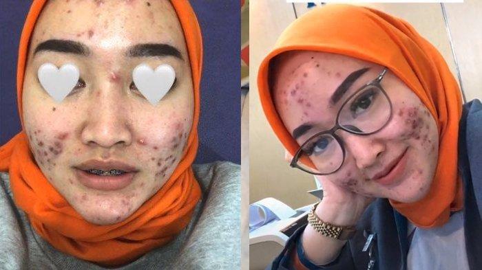 CURHAT Pegawai Bank Cantik Menahan Malu Wajahnya Tak Mulus Dipenuhi Jerawat, Lihat Perjuangannya